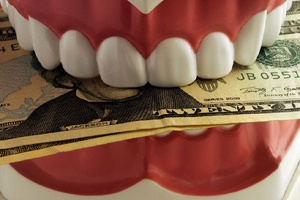 Close-up of dental model with money between teeth