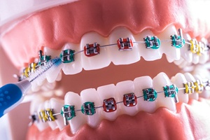 Close-up of colorful traditional braces on dental model