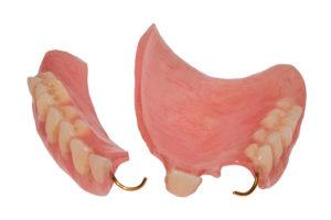 Broken partial denture in Belmont against blank, white background