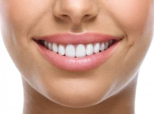 Woman's perfect teeth after veneers or Invisalign in Belmont