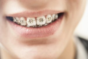 Close-up of traditional braces in Belmont on patient's teeth