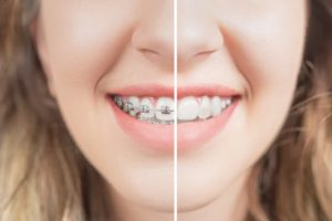 Close-up of smiling woman, transitioning to life after braces